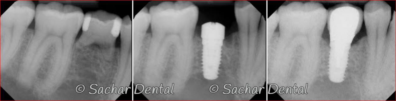 Picture of x-ray of a removed baby tooth replaced with dental implant