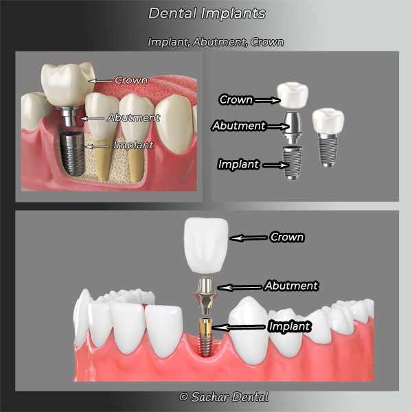 Dental Implants NYC - Sachar Dental NYC
