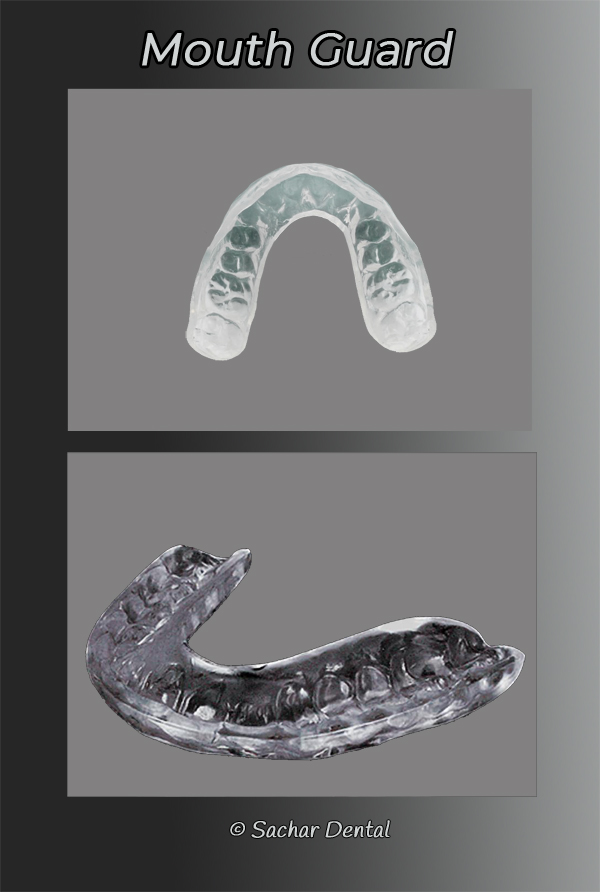 Dentist NYC for mouthguards