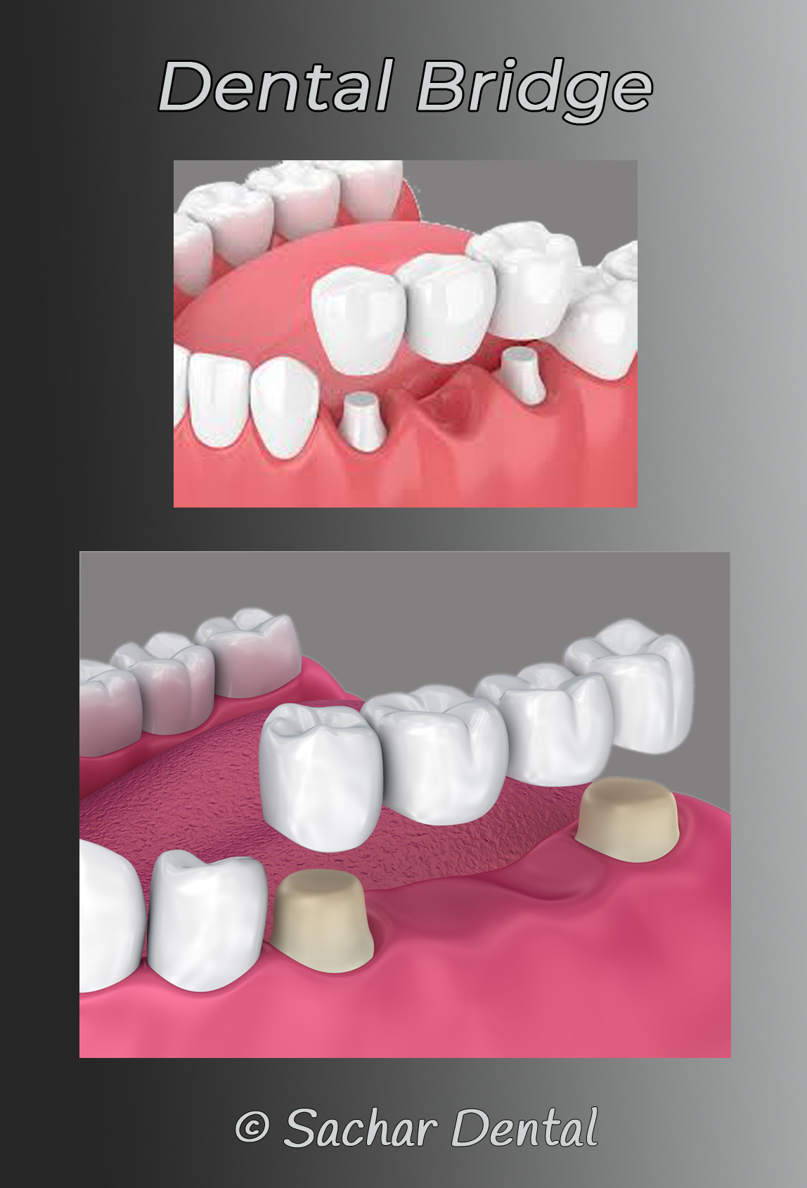 Picture of dental bridge for three teeth and for four teeth