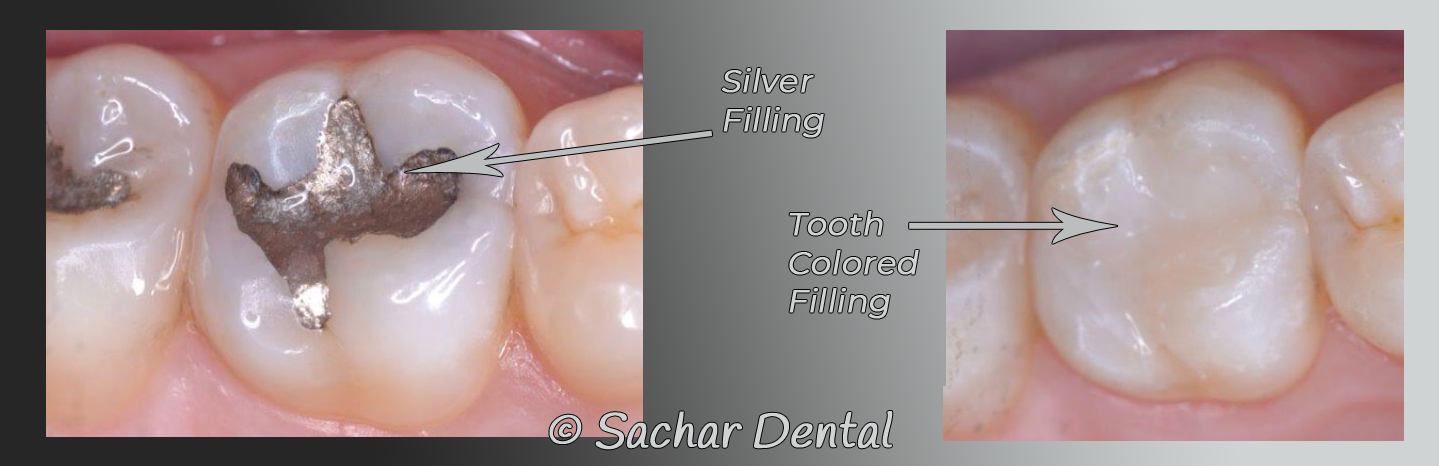Picture of two teeth with fillings.  Silver fillings on the left and a tooth-colored composite filling on the right