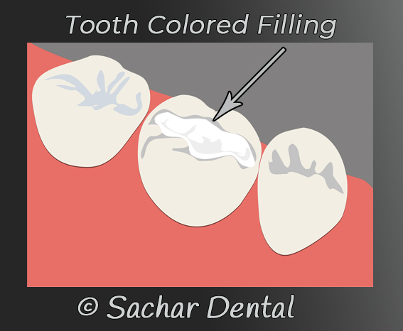 Picture of a tooth colored filling diagram