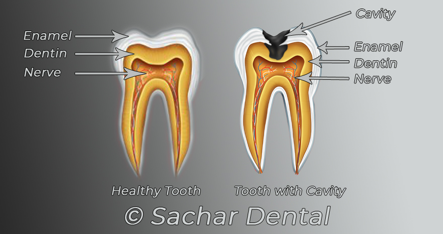 Dentist NYC. Picture, diagram of a healthy tooth and a tooth with a cavity with labels for enamel, Dentin and nerve as well as cavity