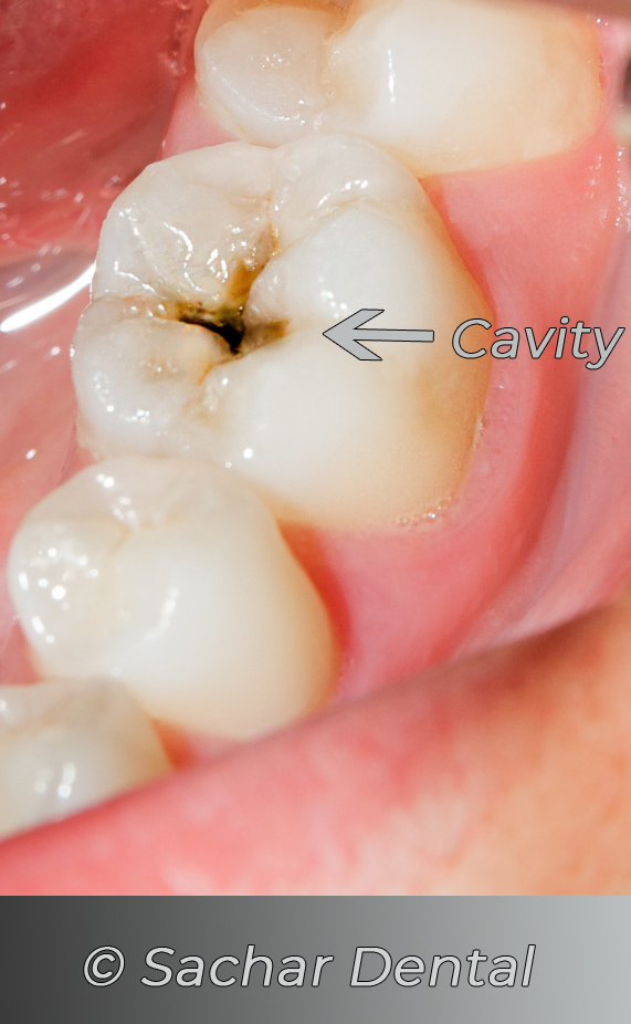 Dentist NYC Picture of a molar with a cavity.