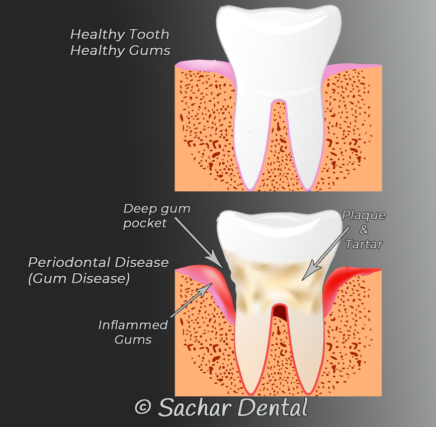 Dentist NYC Picture showing a healthy tooth and a tooth with a gum disease that needs a deep cleaning.  Arrows for deep gum pockets, inflamed gums and plaque & tartar.