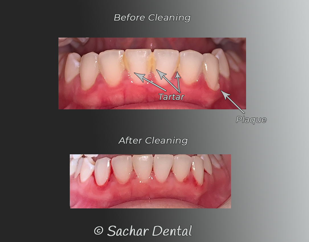Dentist NYC Picture of before and after dental cleaning with plaque and tartar removed