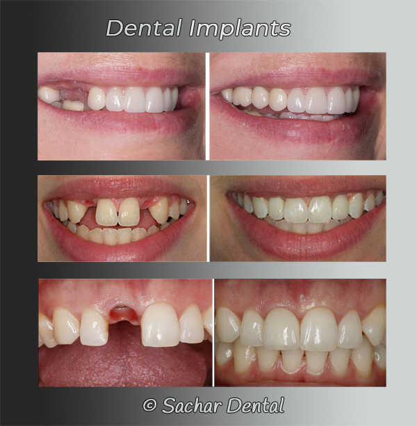 Picture of 3 before and after pictures of patients who had dental implants