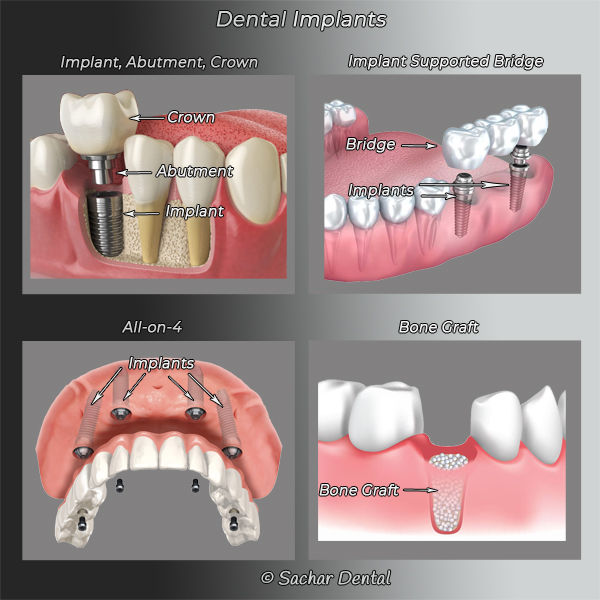 Picture: Diagrams explaining dental implants including implants, abutment, crown, implant supported bridge, all on 4, bone grafting