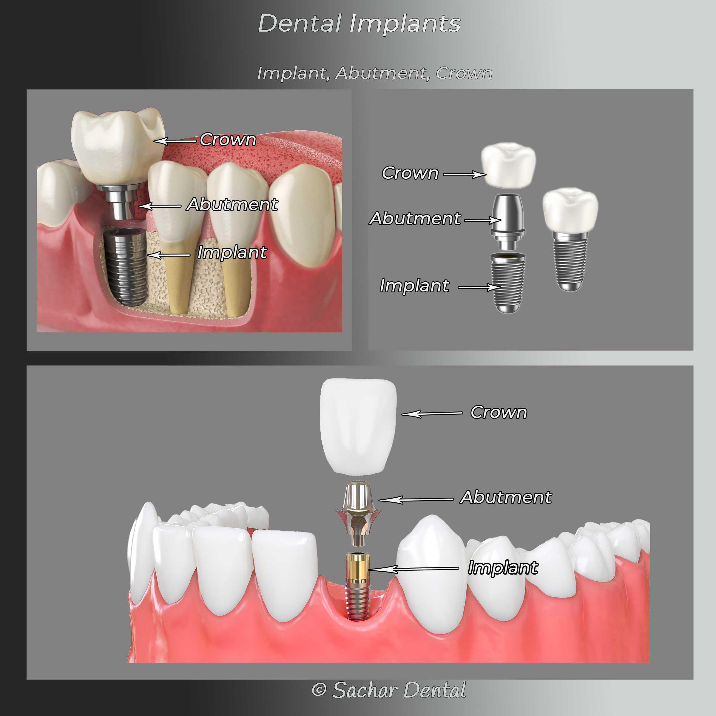 Picture of 3 diagrams showing dental implants abutments and crowns