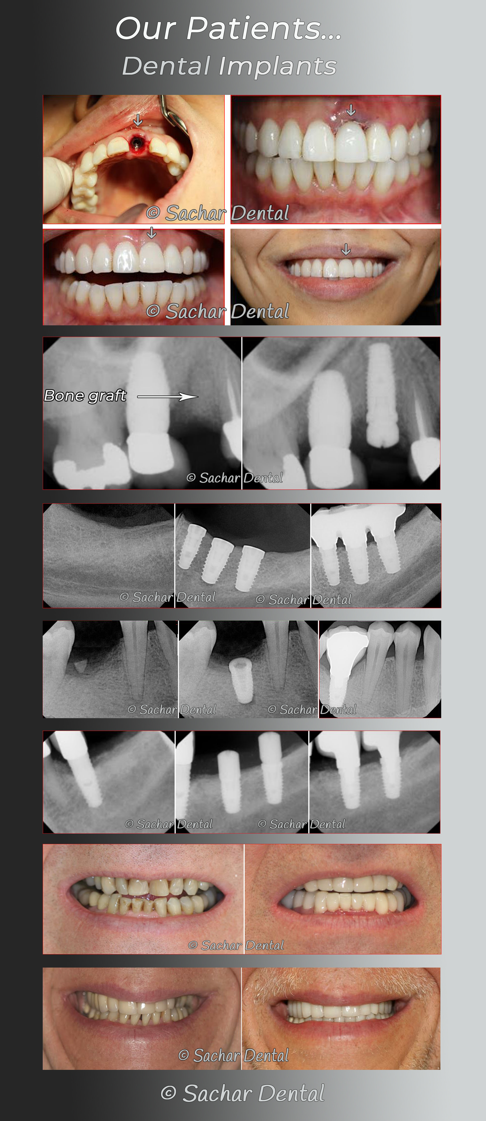 Picture of our patients before and after dental implants 7 different patients