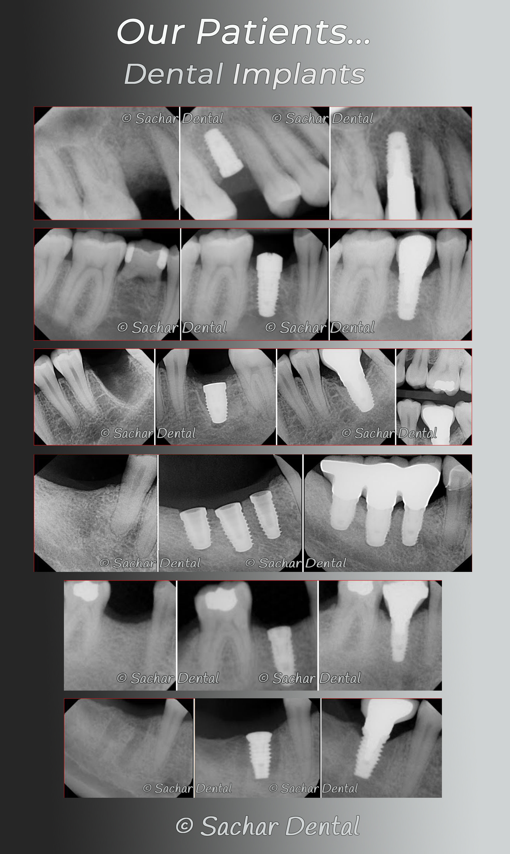 Picture of 6 before and after x-rays of our patients who had dental implants