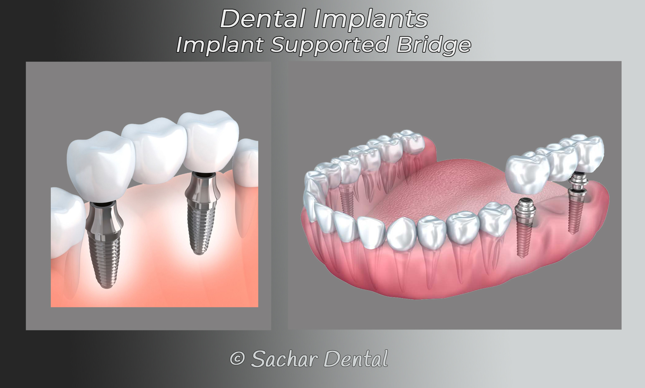 Picture of diagram of dental implants supported Bridge