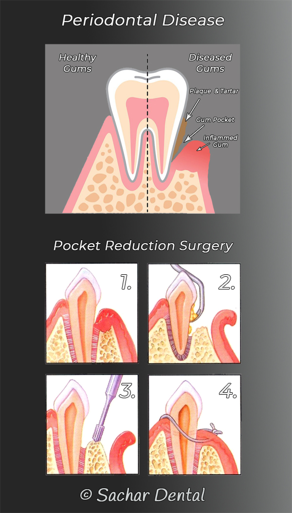 Picture of 2 diagrams explaining periodontal pocket reduction surgery