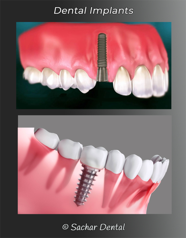 Picture of 2 diagrams explaining dental implants