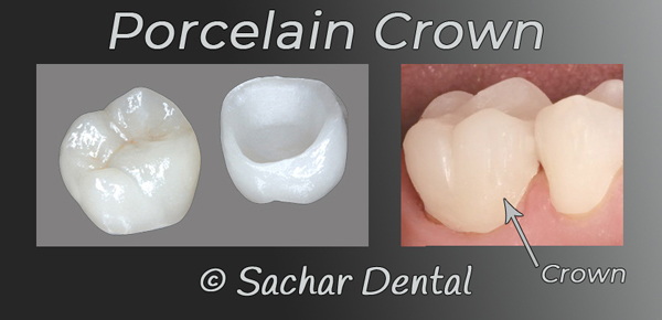 Cosmetic Dentist NYC - porcelain Crown