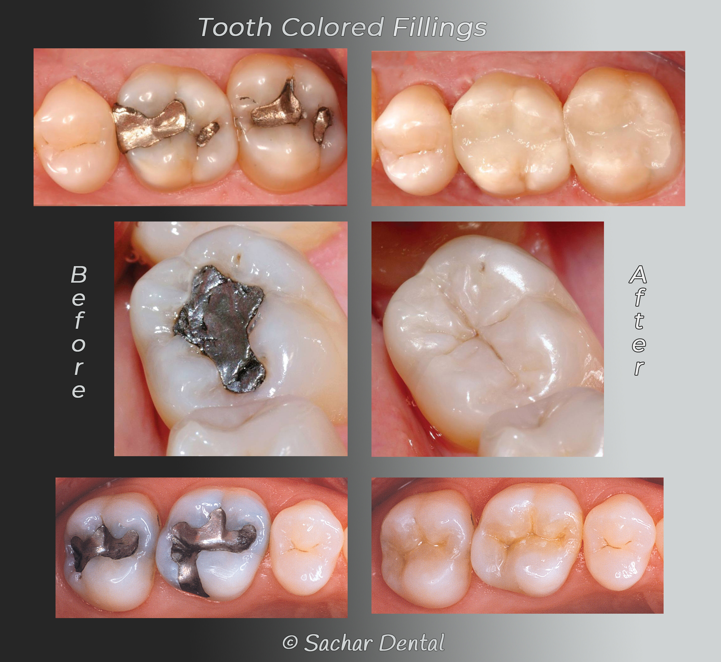 Picture of before and after replacing metal fillings with tooth colored fillings