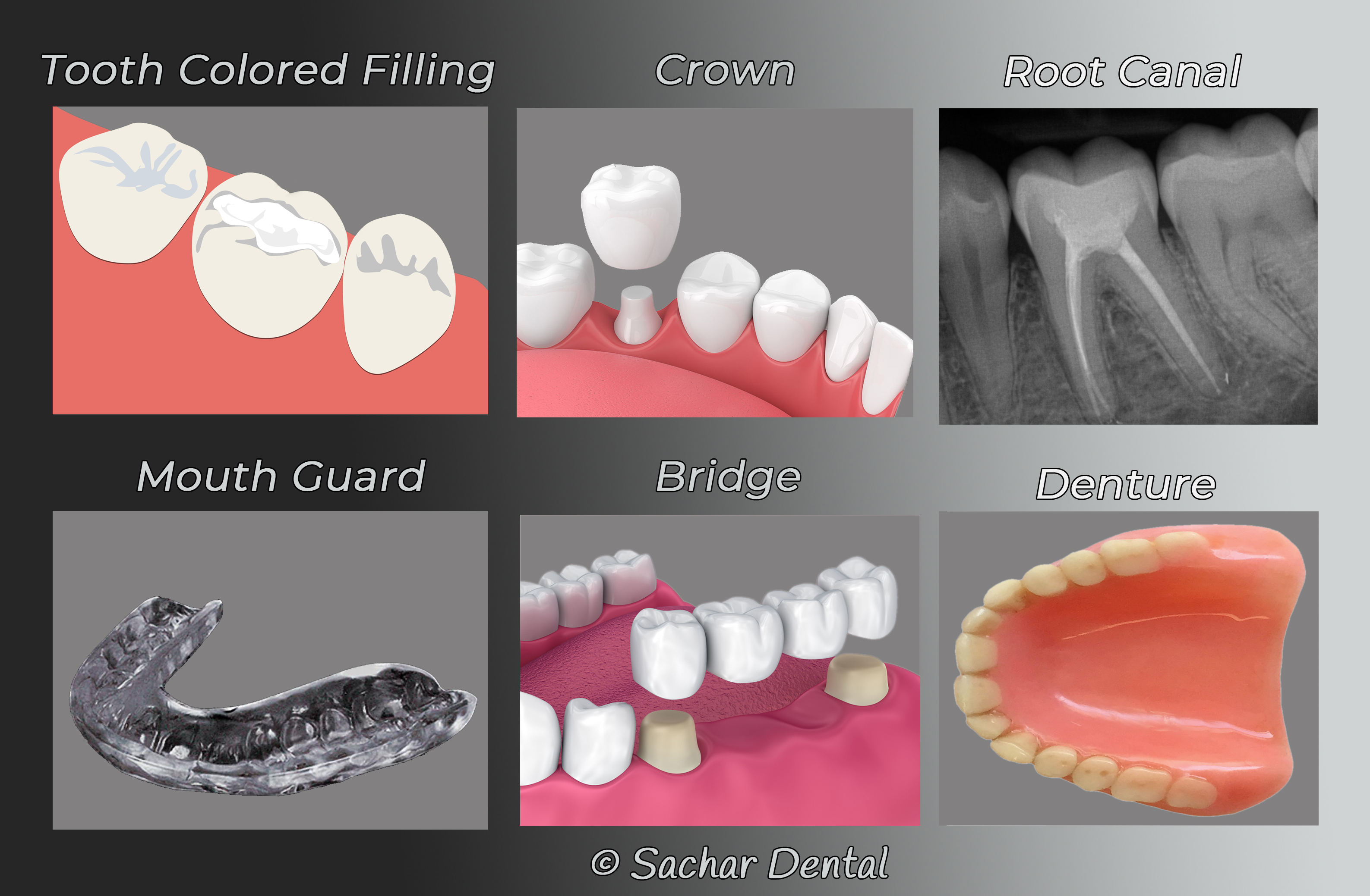 Picture of general dentistry we perform including fillings crowns root canal mouth guard Bridges and dentures