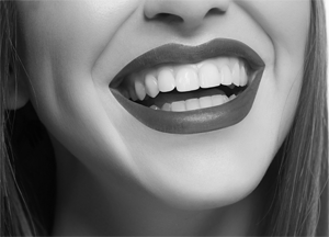 Best Cosmetic Dentist NYC Picture of woman smiling with perfect teeth