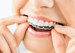 Top Invisalign Dentist NYC, woman removing Invisalign aligner