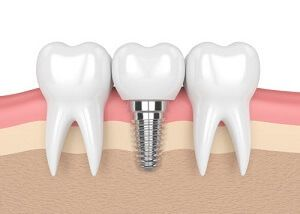 Implant Dentist NYC Picture of three teeth with one dental implant