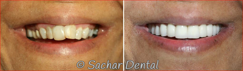 Before and after pictures of full mouth reconstruction with porcelain veneers and crowns ridges root canals in NYC