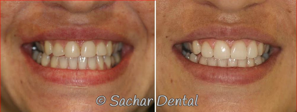 Before and after pictures of Cosmetic Dentist NYC