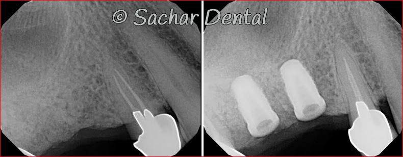 Picture of Before and after x-rays of dental implants