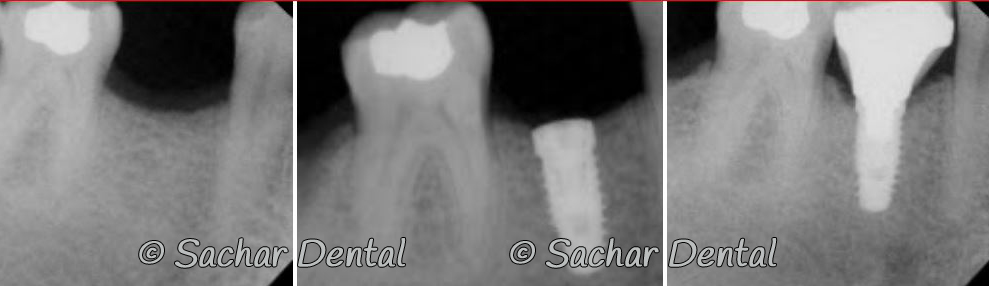 Before and after x-ray of abutment, crown and dental implant