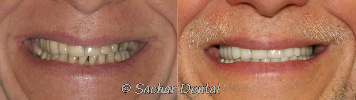 Before and after pictures full mouth reconstruction with implants crowns veneers