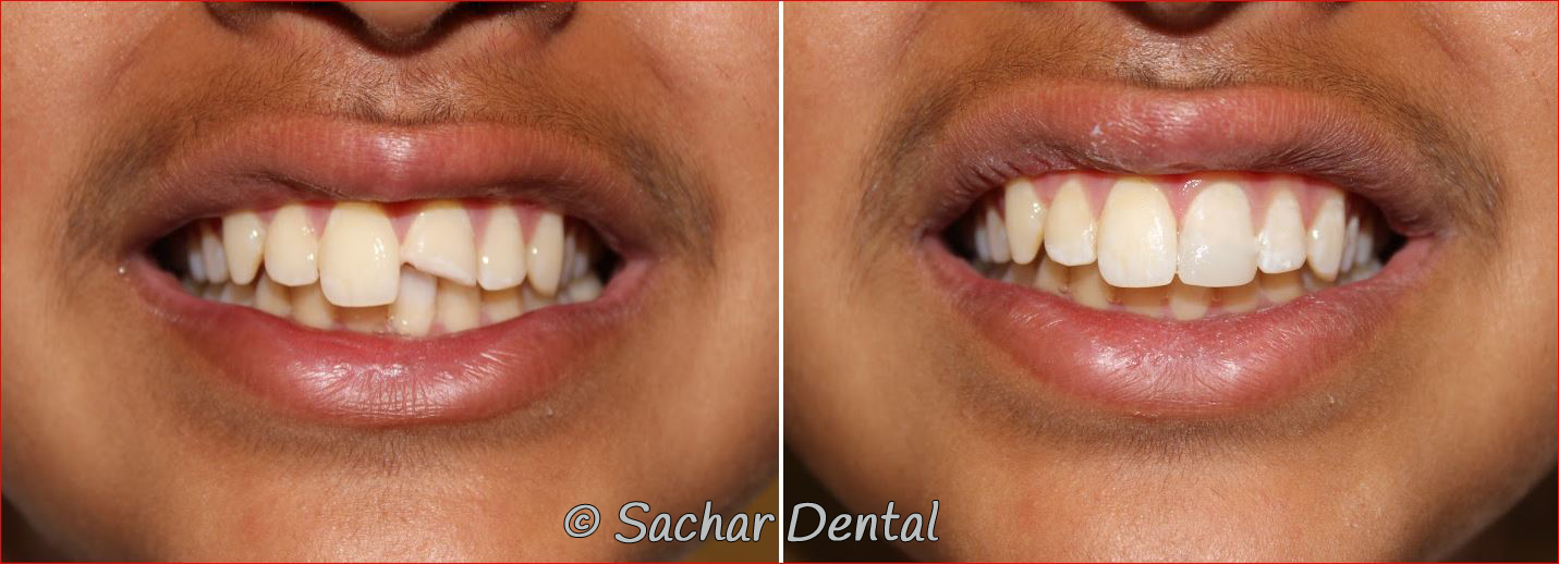 Cosmetic Dentist NYC, Before and after pictures