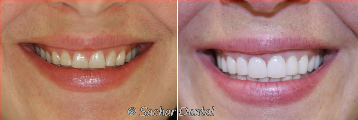 Best Smile Makeover Dentists in NYC