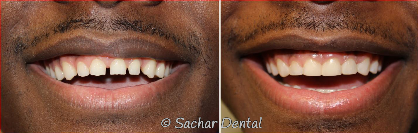 Before and after pictures of smile makeovers with resin bonding veneers