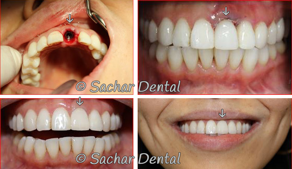Before and after Picture of single tooth implant
