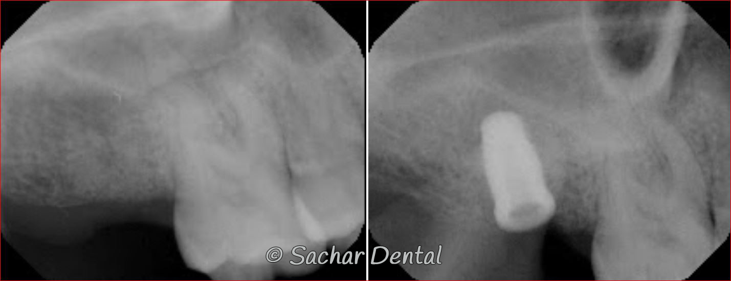 Picture of Before and after x-rays of dental implants plus bone gGraft