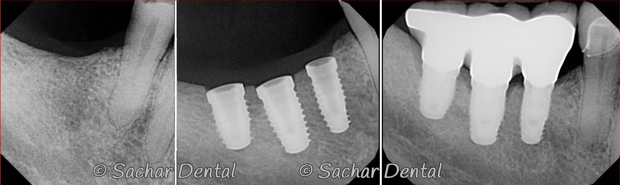 Picture of Before and after x-rays of bone graft plus dental implant