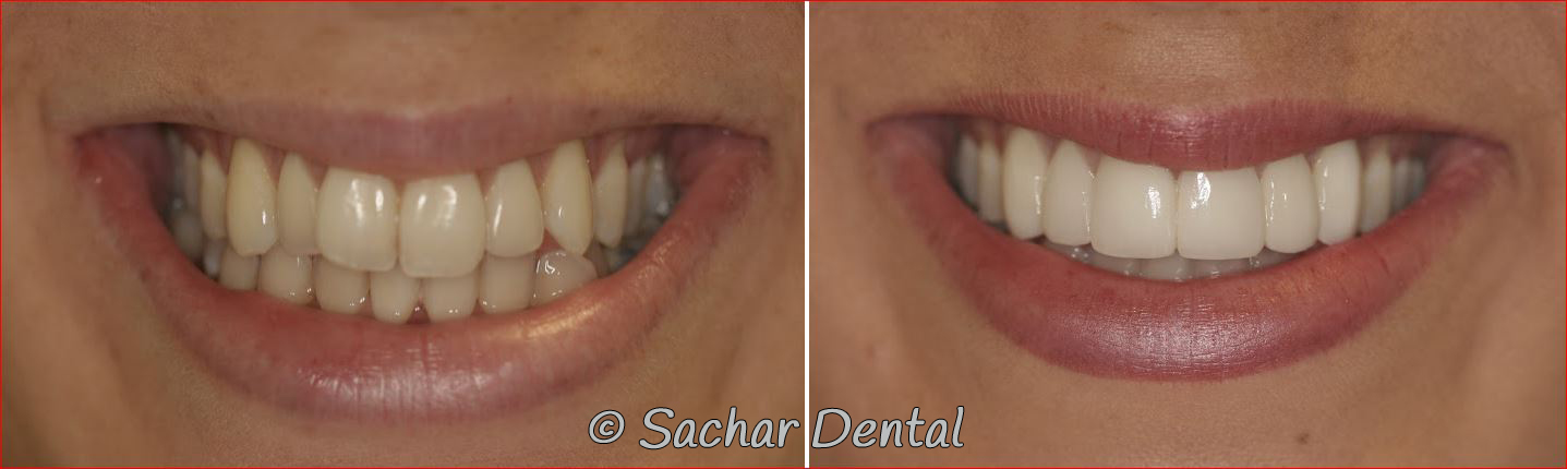 Picture of smile makeover with porcelain veneers of six teeth