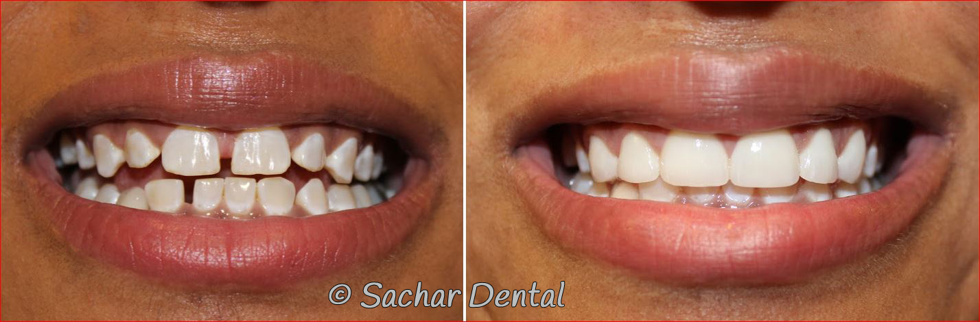 Before and after pictures of smile makeover porcelain veneers and resin bondings