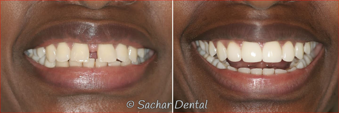 Picture of before and after pictures smile makeover with porcelain veneers of upper front teeth