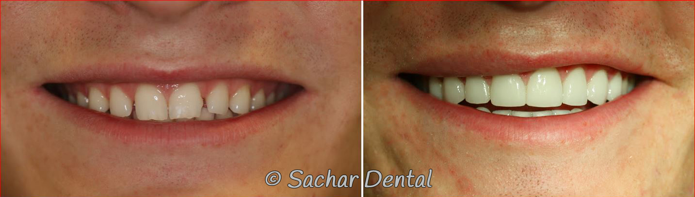 Before and after pictures of smile makeover with porcelain veneers