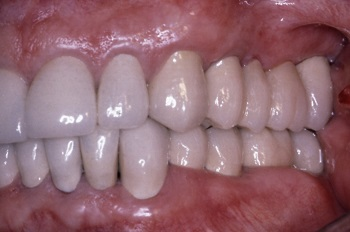 restorative dental crown treatments
