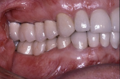 dental crown treatments