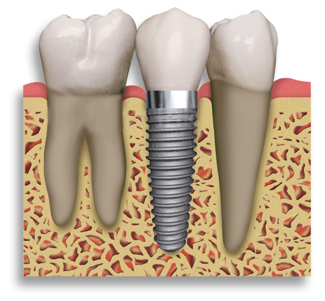 Dental Implant Eden, Huntsville, Liberty, Utah. Replace missing tooth Iverson & Burton De