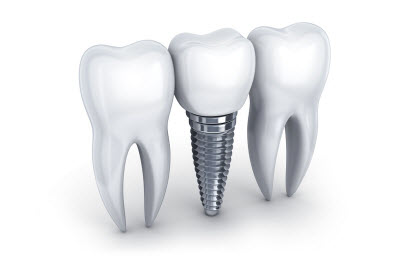 3d illustration of dental implant and tooth on white background
