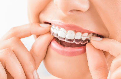 tustin invisalign clear aligners treatments