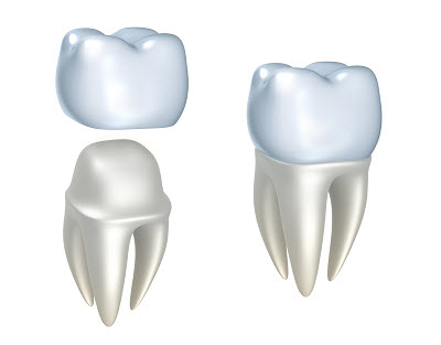 what do dental crowns and caps look like