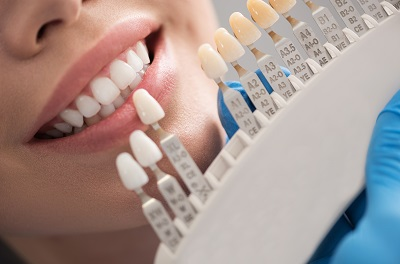 patient matching teeth color for veneer treatment in dental office