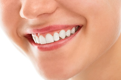 Close of up of healthy smile