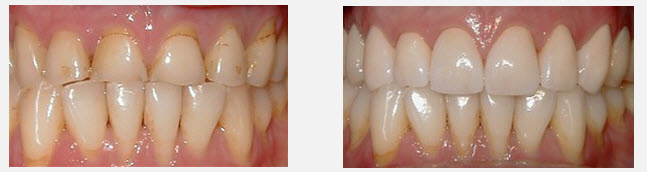 smile transformation before and after photo merrell smiles of monroe nc