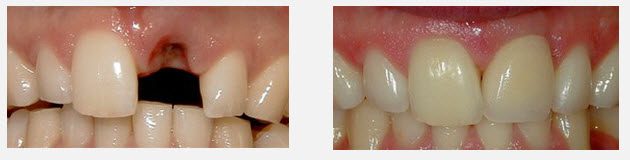 dental implant before and after photo merrell smiles of monroe nc