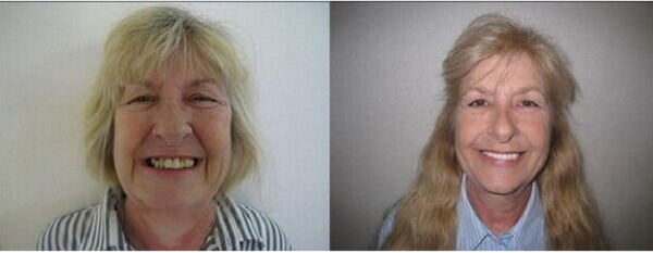 smiling patient after smile makeover merrell smiles of monroe nc